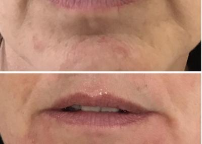 Before and After Line Treatment