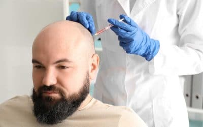 Our Guide to Platelet-Rich Plasma Therapy and How It Can Help Hair Loss