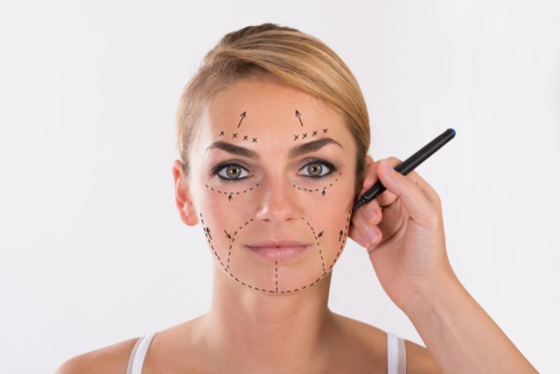 Client Mark Up Face Lift