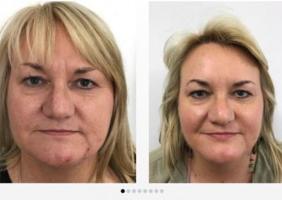 Botox Before and After Newscastle