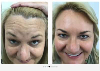 Frown Lines Before and After Botox