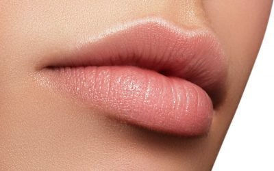 Ultimate Guide To Lip Fillers: Everything You Need To Know!