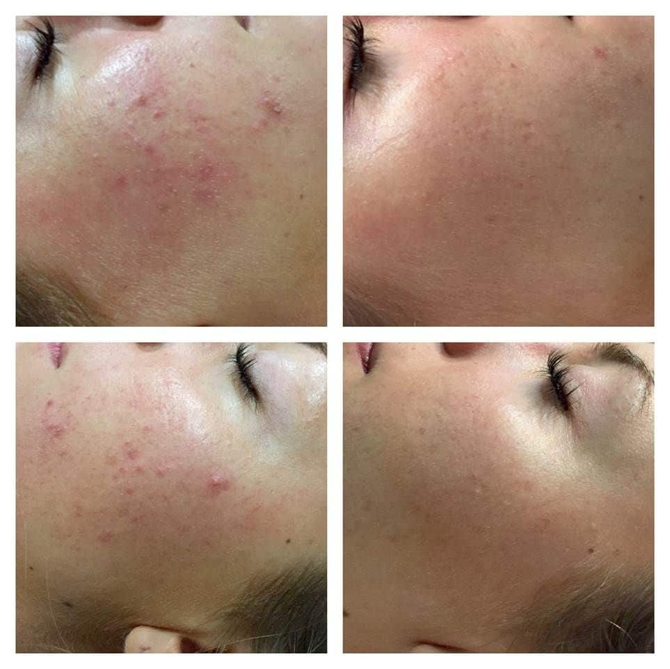 microneedling Newcastle upon Tyne