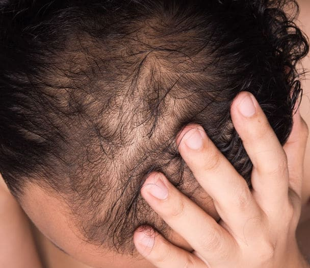HAIR LOSS TREATMENT NEWCASTLE UPON TYNE
